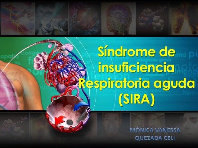 Síndrome de insuficiencia Respiratoria aguda (SIRA)