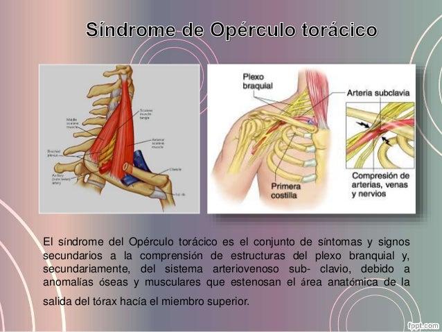 Síndrome de opérculo torácico y tratamiento en terapia ocupacional