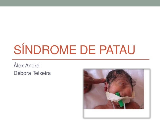 SÍNDROME DE PATAU Álex Andrei Débora Teixeira