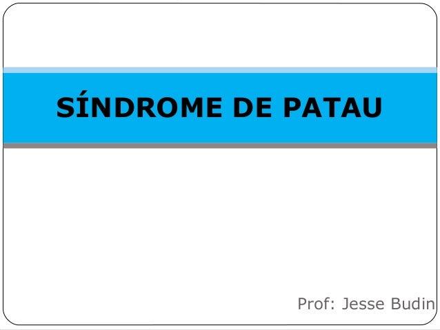 SÍNDROME DE PATAU Prof: Jesse Budin