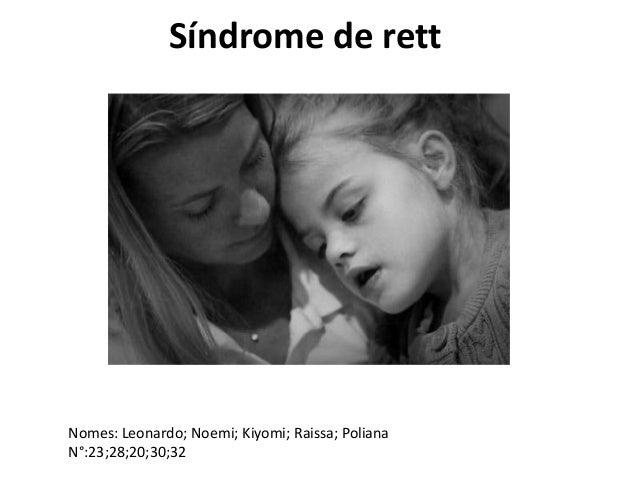 Síndrome de rett  Nomes: Leonardo; Noemi; Kiyomi; Raissa; Poliana N°:23;28;20;30;32