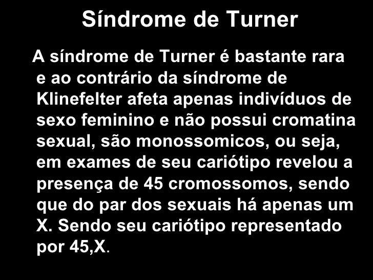Síndrome de Turner <ul><li>A síndrome de Turner é bastante rara e ao contrário da síndrome de Klinefelter afeta apenas ind...