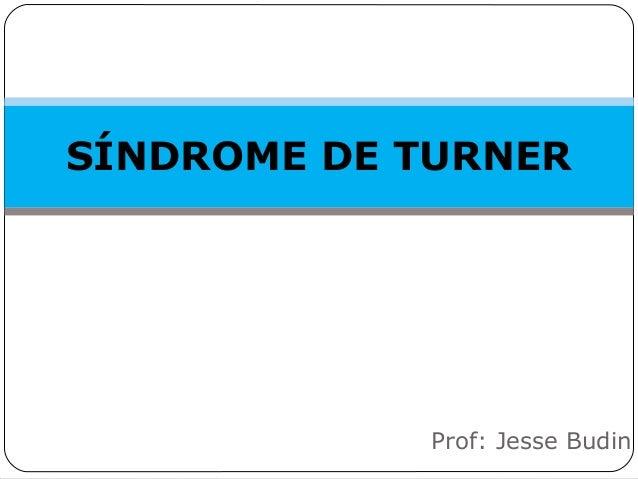 SÍNDROME DE TURNER Prof: Jesse Budin