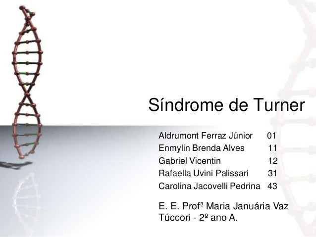 Síndrome de Turner Aldrumont Ferraz Júnior Enmylin Brenda Alves Gabriel Vicentin Rafaella Uvini Palissari Carolina Jacovel...