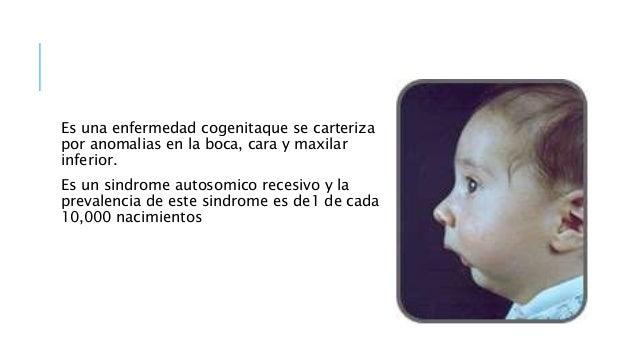 CAUSAS 1. Se desconocen las causas excatas del sindrome, pero pueden ser parte de muchos sindromes genetico. 2. La mandibu...