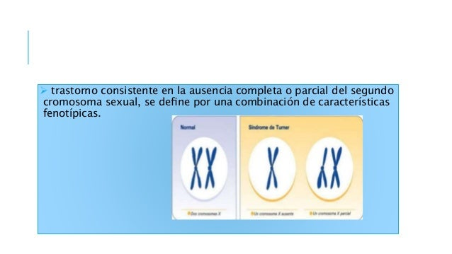 La mitad de las pacientes con síndrome de Turner tiene una dotación cromosómica 45,X. La otra mitad presenta mosaicismo y ...