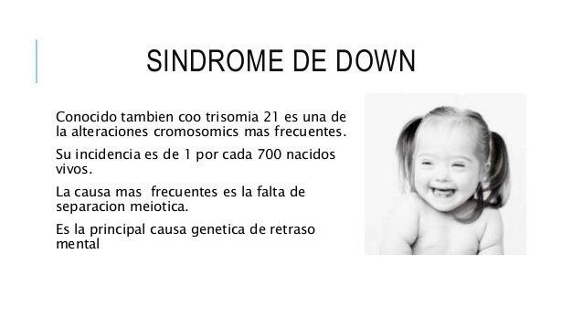 SINDROME DE DOWN Conocido tambien coo trisomia 21 es una de la alteraciones cromosomics mas frecuentes. Su incidencia es d...