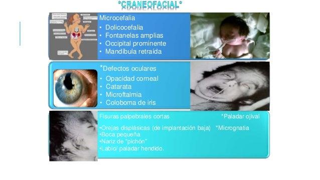 *Urogenital* Testículos no descendidos Hipoplasia de labios mayores con clítoris prominente Malformaciones uterinas Hiposp...