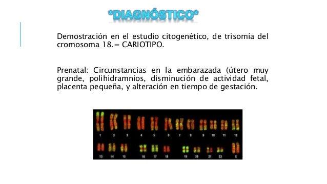 enfermedades de origen genetico