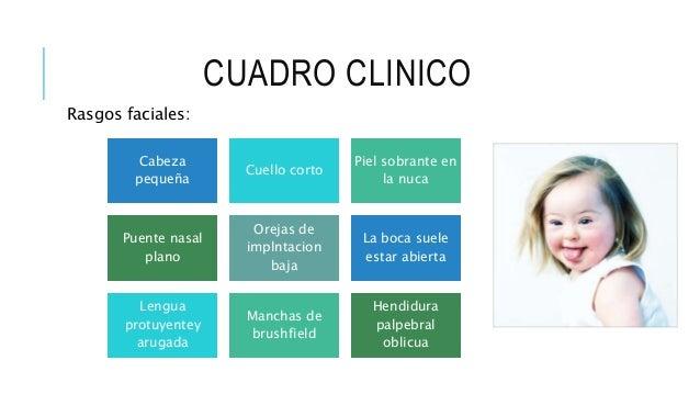 CUADRO CLINICO Rasgos faciales: Cabeza pequeña Cuello corto Piel sobrante en la nuca Puente nasal plano Orejas de implntac...