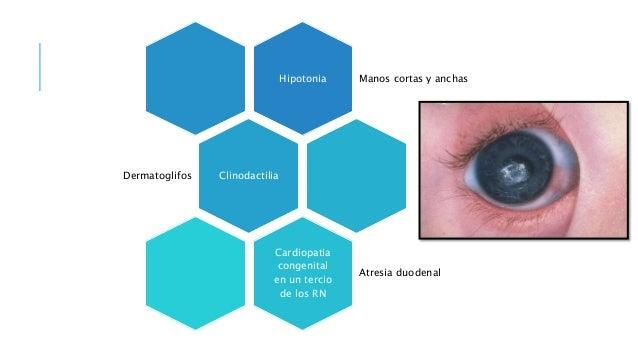 Hipotonia Manos cortas y anchas ClinodactiliaDermatoglifos Cardiopatia congenital en un tercio de los RN Atresia duodenal