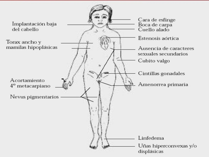 turner and klinefelter syndrome Klinefelter syndrome is a chromosomal condition that affects male physical and cognitive development its signs and symptoms vary among affected individualsaffected.