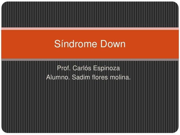 Síndrome Down   Prof. Carlós EspinozaAlumno. Sadim flores molina.