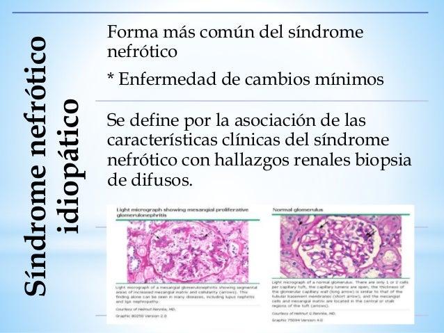 MANIFESTACIONES CLÍNICAS Susceptibilidad a infecciones por disfunción inmune de células T y B, pérdida urinaria de inmunog...