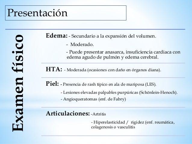 Presentación Rara vez refieren dolor leve en flanco, espalda o abdomen. Antecedente cercano: Fiebre, Infección del tracto ...