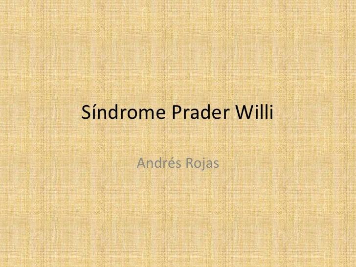 Síndrome Prader Willi     Andrés Rojas