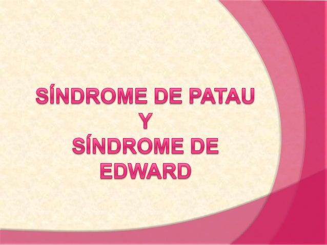 Trisomía. Es una anomalía cromosómica  En vez de tener dos copias del material genético de un cromosoma, se tiene tres.  S...