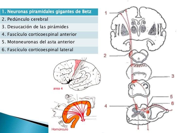 Síndromes de la neurona motora superior