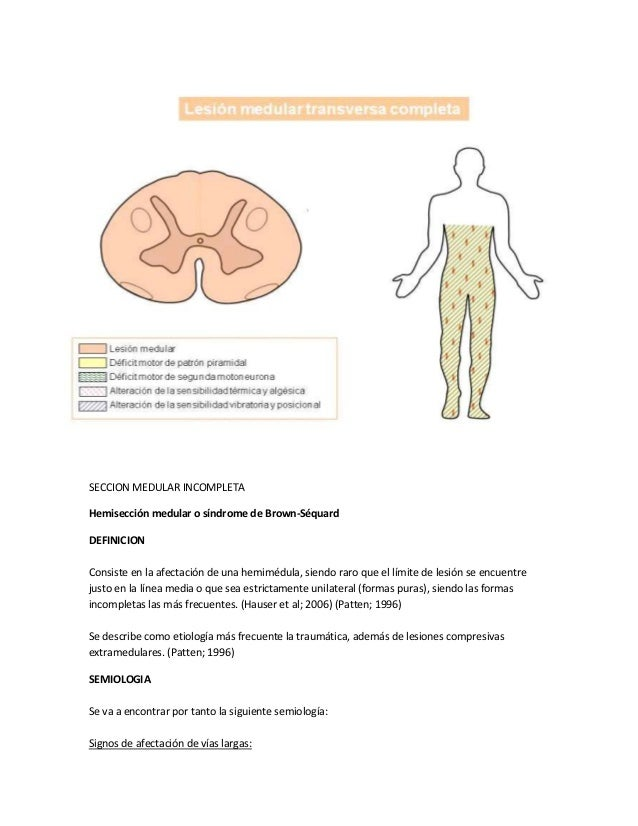 Síndromes medulares clásicos
