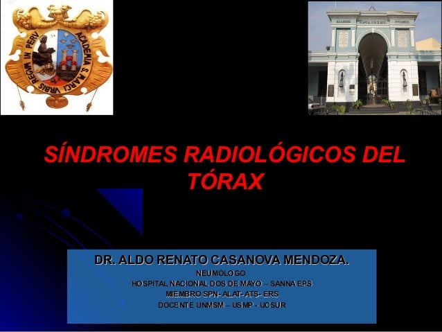 SÍNDROMES RADIOLÓGICOS DELSÍNDROMES RADIOLÓGICOS DEL TÓRAXTÓRAX DR. ALDO RENATO CASANOVA MENDOZA.DR. ALDO RENATO CASANOVA ...