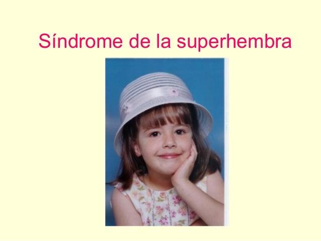 Síndrome de la superhembra