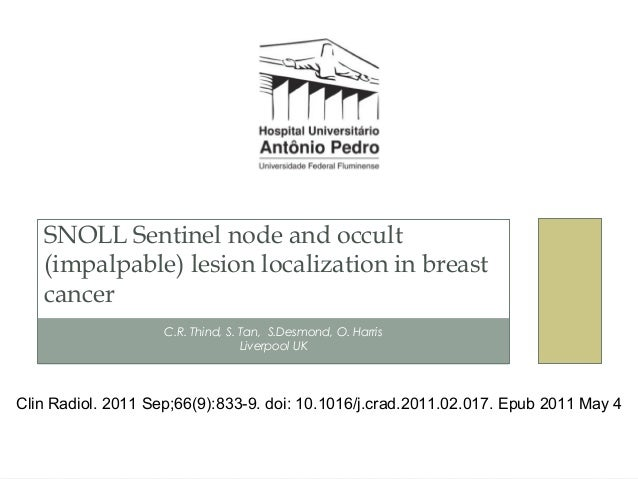C.R. Thind, S. Tan, S.Desmond, O. HarrisLiverpool UKSNOLL Sentinel node and occult(impalpable) lesion localization in brea...