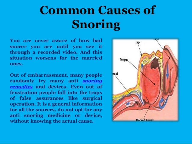common causes of snoring essay The most common causes of snoring in children is due to enlarged adenoids and enlarged tonsils these may cause partial airway obstruction and lead to snoring sleep apnoea syndrome is common in these children.