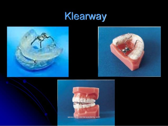 Image result for klearway logo