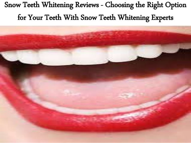 Snow Teeth Whitening Good Alternative