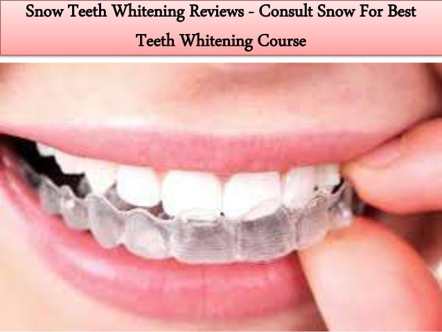 Snow Teeth Whitening Kit Settings