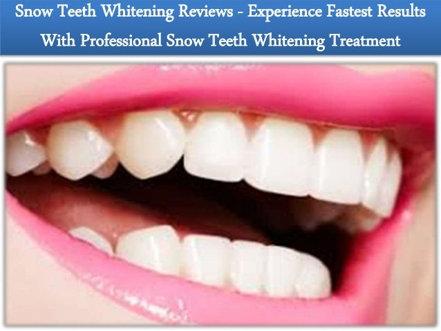Snow Teeth Whitening Rate