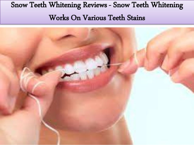 Youtube Features Snow Teeth Whitening