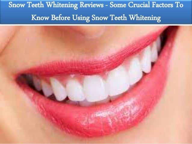 Snow Teeth Whitening Info