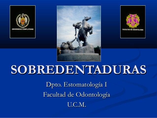 SOBREDENTADURASSOBREDENTADURAS Dpto. Estomatología IDpto. Estomatología I Facultad de OdontologíaFacultad de Odontología U...