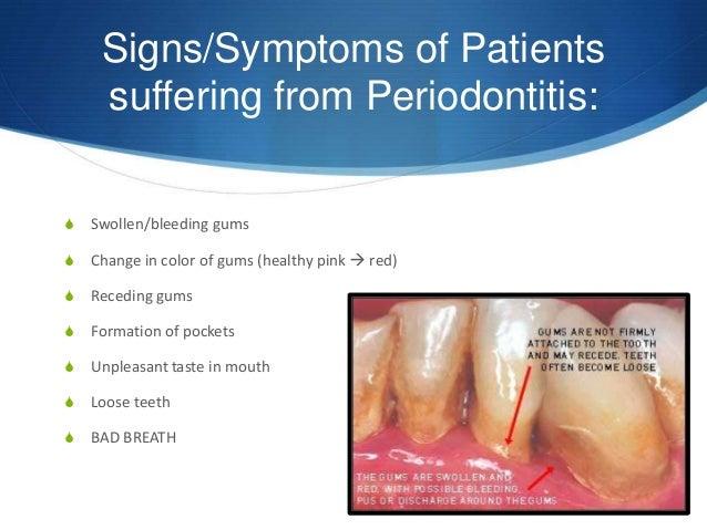 Signs/Symptoms ...