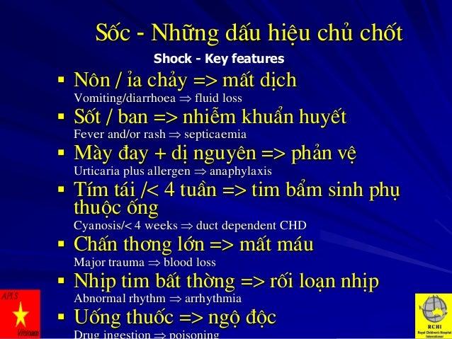 Sèc - Nh÷ng dÊu hiÖu chñ chèt Shock - Key features   N«n / Øa ch¶y => mÊt dÞch Vomiting/diarrhoea  fluid loss   Sèt / b...