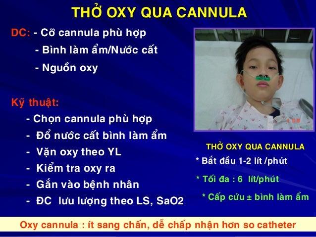 THÔÛ OXY QUA CANNULA DC: - Côõ cannula phuø hôïp - Bình laøm aåm/Nöôùc caát - Nguoàn oxy Kyõ thuaät: - Choïn cannula phuø ...