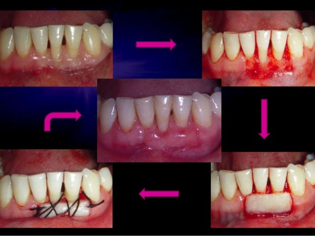 Modified palatal roll technique for dental implants • Abrams 1980 • For deficient edentulous ridges for fixed maxillary pr...