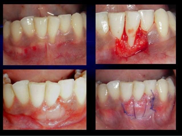 • Reikie 1995 • Application of trap door modification to enhance soft tissue contours around dental implant abutments • Li...