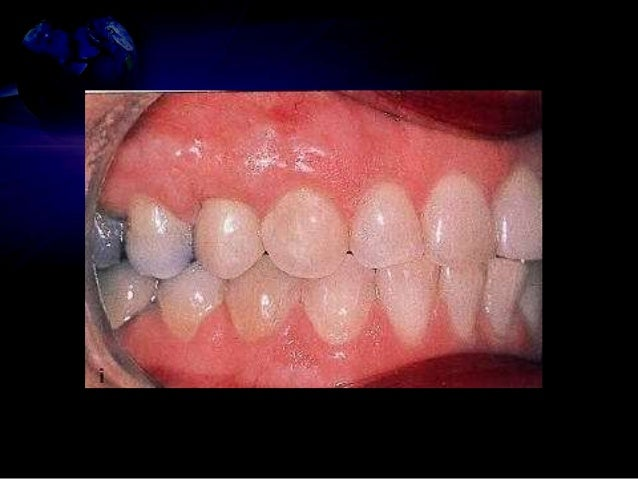 • Thicker grafts resist functional stresses of mastication, intracrevicular restorative procedures and oral hygiene proced...