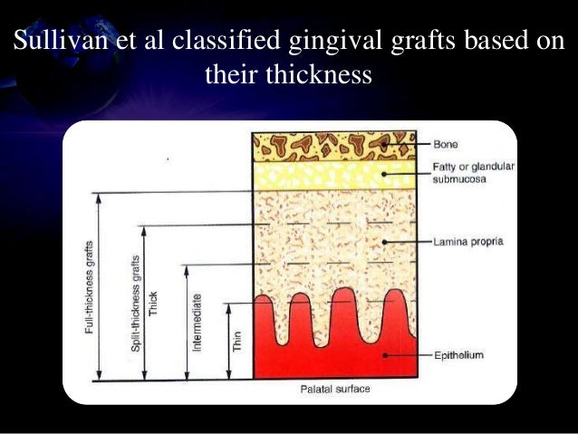 • If adequate gingival tissue exists (3mm) at implant site, gingival grafting can be performed at second stage for submerg...