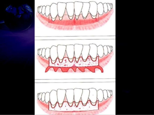 Gingival grafts have been adapted and secured at recipient site with meticulous suturing