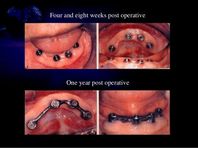 • Indications and sequencing in implant therapy • Reconstruction can be done prior to implant placement, during osseointeg...
