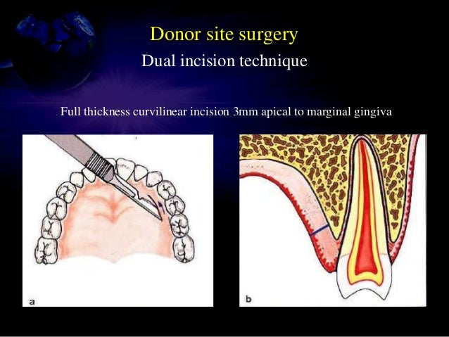 Single incision technique Full thickness curvilinear incision 3mm apical to PMs Blade reoriented to parallel the surface o...
