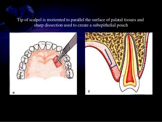 Soft tissue grafting around implants