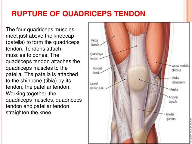 Soft tissue injury of the knee