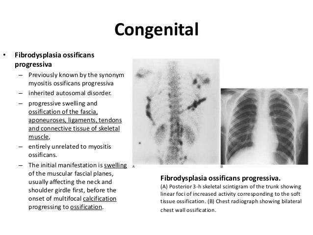 Fibrodysplasia ossificans progressiva soft connective tissue