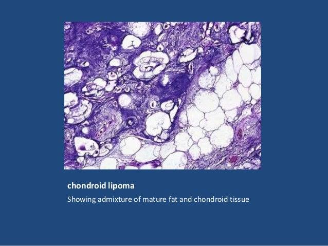 Pleomorphic lipoma. The floret cells