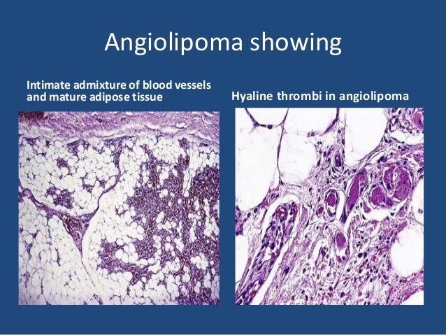• It may be confused with myxoid liposarcoma. • It is distinguished from the latter by • virtue of the young age of the pa...