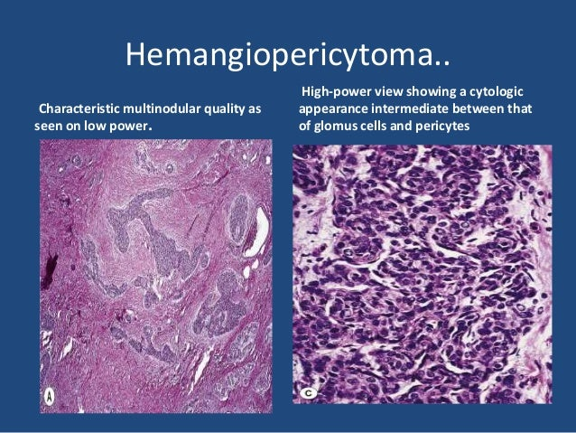 Epithelioid hemangioendothelioma • Is composed of a distinctive type of endothelial cells having an epithelial-like or his...